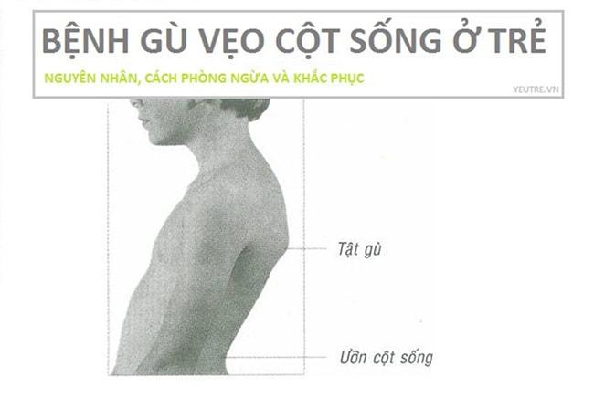 ghe-ngoi-chong-gu